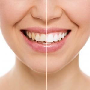 Flotte hvide tænder med tandafblegning